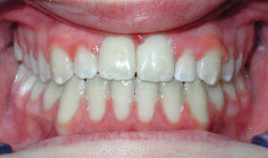 After: Patient with an anterior, posterior openbite