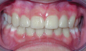After: Patient with crowding, crossbite and mismatched midlines