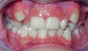 Before: Patient with crowding, crossbite and mismatched midlines