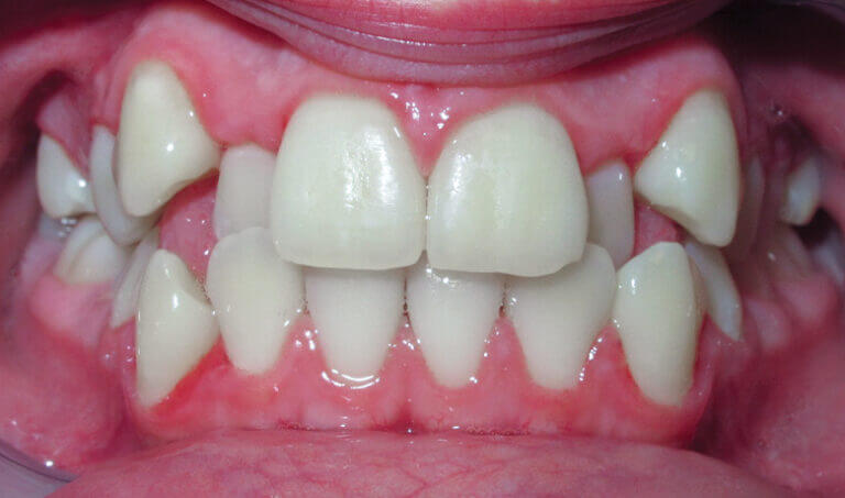 After Patient with crowding and a crossbite