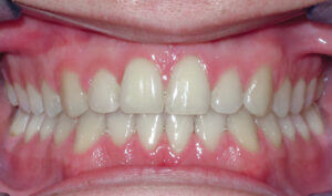 After: Patient with crossbite and underbite tendency