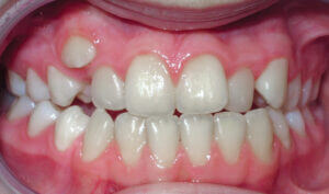 Before: Patient with crowding and an underbite