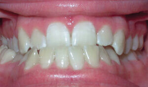 Before: Patient with an underbite, crossbite and crowding