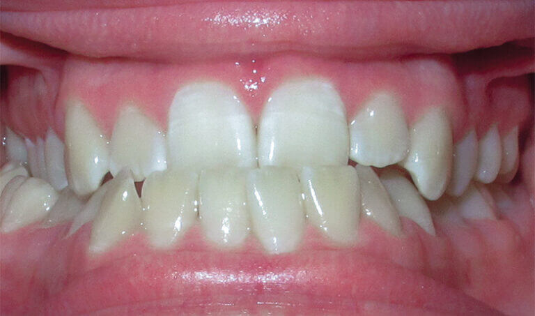 After Patient with an underbite, crossbite and crowding