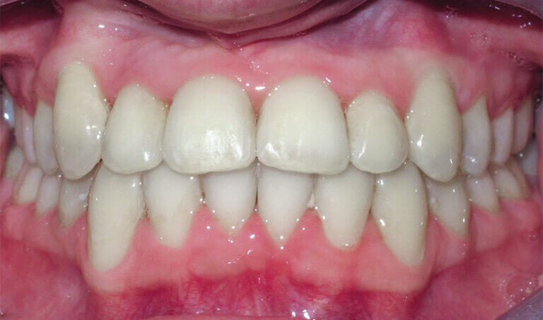 After Patient with a crossbite, underbite, and crowding
