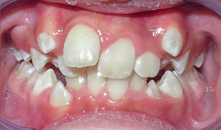 After Patient with crowding and protrusion