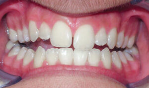 Before: Patient with an openbite