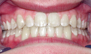 After: Patient with an overbite, spacing and protrusion