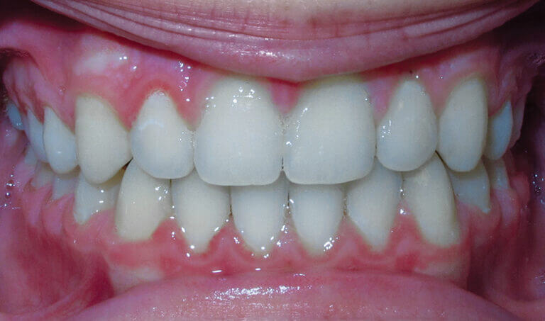 After Patient with spacing and an overbite
