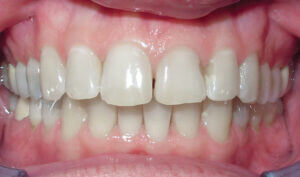 Before: Patient with an overbite