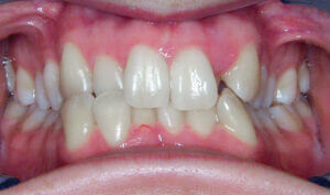 Before: Patient with crowding and a crossbite