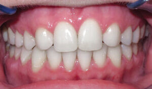 After: Patient with a crossbite