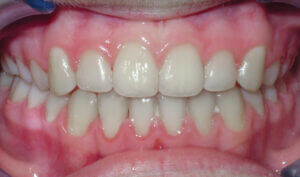 After: Patient with crowding and an underbite