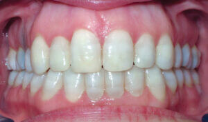 After: Patient with crowding, openbite and mismatched midlines
