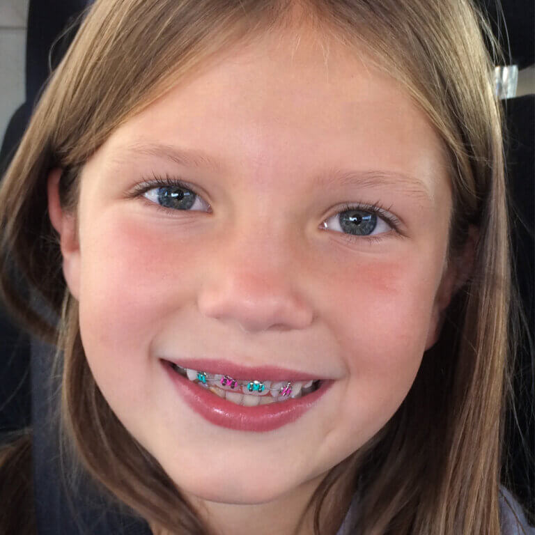 Girl with braces smiling at the camera